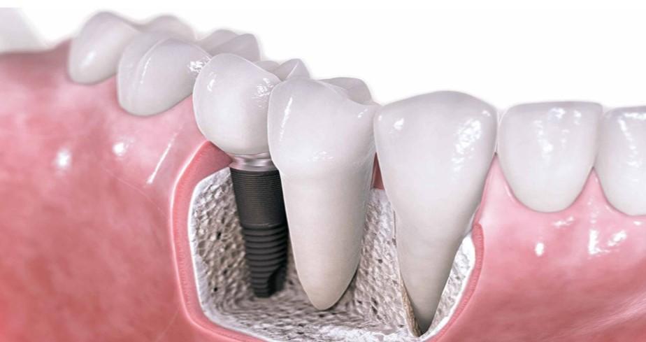 Implantati so izjemno dobra rešitev ob izgubi zob