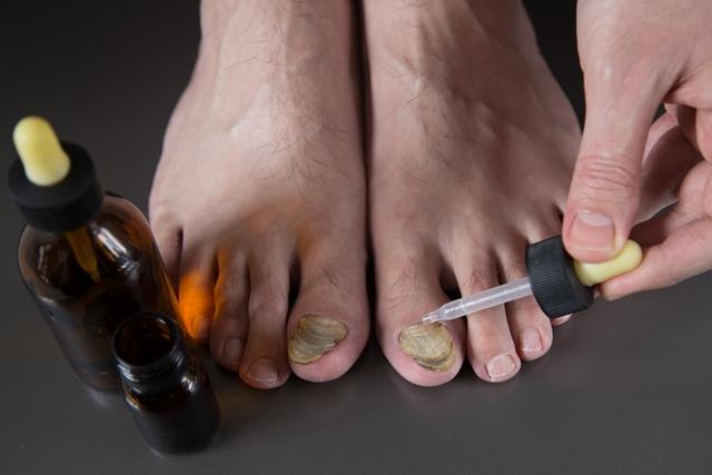 Končno je prišla močna rešitev za odstranjevanje glivic iz rok in nog